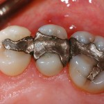 Silver fillings have become a health concern because they leach mercury into the body.